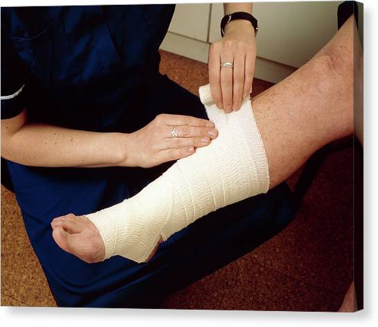 Ankles Canvas Print - Applying Bandage To Sprained Ankle by Hattie Young/science Photo Library