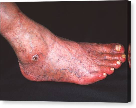 Ankles Canvas Print - Arterial Ulcer by Dr P. Marazzi/science Photo Library