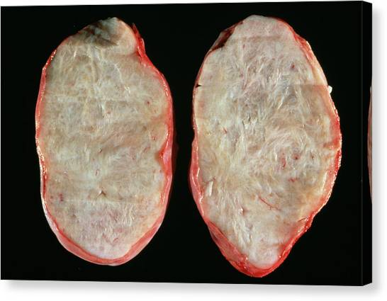 Neoplasm Canvas Print - Benign Ovary Tumour by Cnri/science Photo Library
