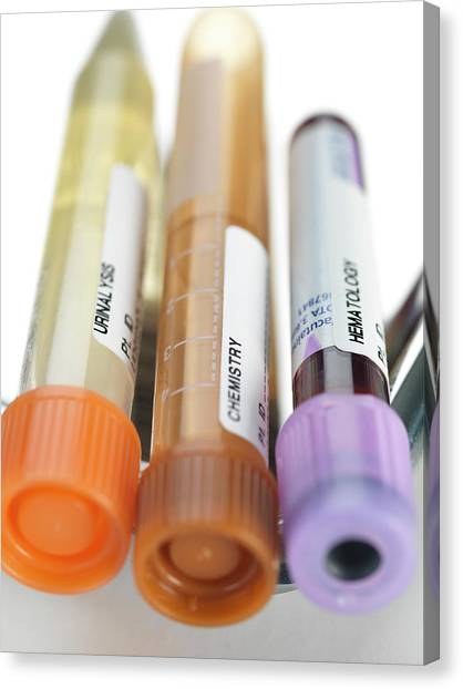 Blood And Other Samples For Testing Canvas Print by Tek Image