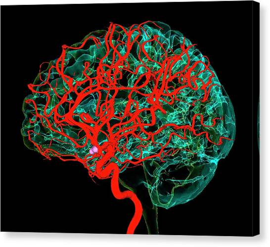 Blood Vessels Supplying The Brain Canvas Print by K H Fung/science Photo Library