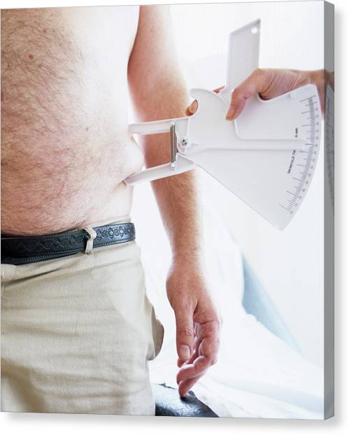 Body Fat Assessment Canvas Print by Ian Hooton/science Photo Library