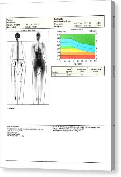 T-bone Canvas Print - Bone Density Scan by Saturn Stills