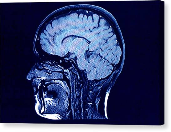 Brain Head Scan Canvas Print by Roxana Wegner
