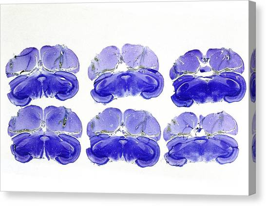 Histology Canvas Print - Brain Of A Quail by Sinclair Stammers/science Photo Library.