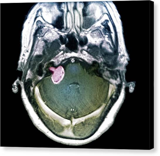 Neoplasm Canvas Print - Brain Tumour by Zephyr