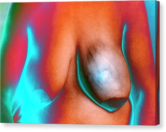 Breast Cancer Canvas Print - Breast Cancer by Zephyr/science Photo Library
