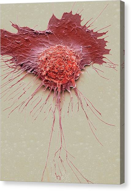 Bronchial Epithelium Canvas Print by Steve Gschmeissner