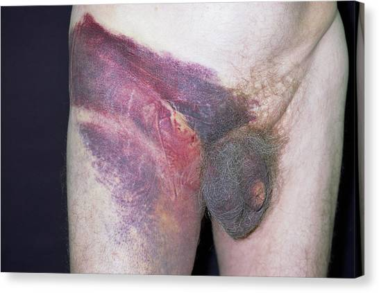 Groin Canvas Print - Bruised Groin by Dr P. Marazzi/science Photo Library