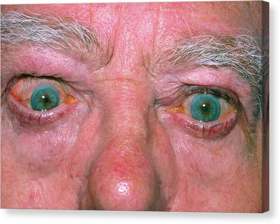 Bulging Eye Of Man With Thyrotoxicosis by Science Photo Library