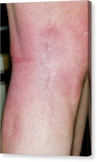 67 Canvas Print - Cancer Removal Scar On The Knee by Dr P. Marazzi/science Photo Library