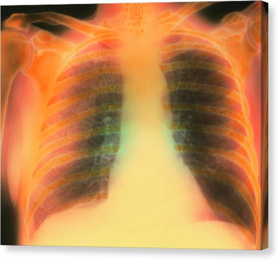 Chronic Canvas Print - Chest X-ray Showing Pulmonary Emphysema by Science Photo Library