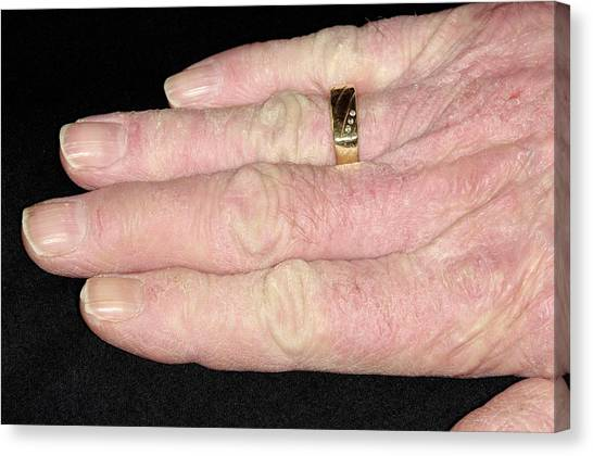 Chronic Canvas Print - Chronic Eczema On The Hands by Dr P. Marazzi/science Photo Library