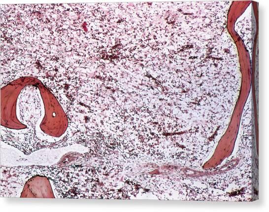 Chronic Canvas Print - Chronic Myeloid Leukaemia by Cnri/science Photo Library