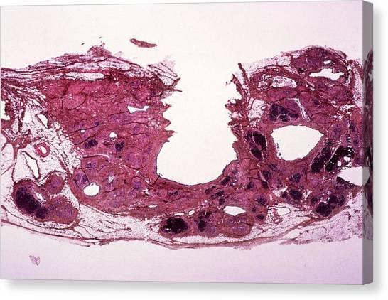 Chronic Canvas Print - Chronic Pancreatitis by Cnri