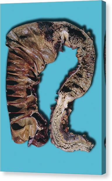 Chronic Canvas Print - Chronic Ulcerative Colitis by Medimage/science Photo Library