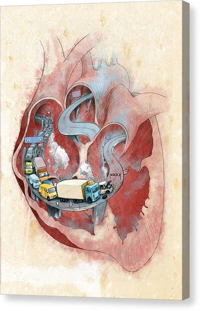 Clogged Heart Canvas Print by Fanatic Studio / Science Photo Library