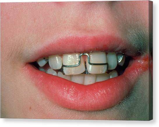 Braces Canvas Print - Close-up Of Child's Mouth Fitted With Dental Brace by Science Photo Library