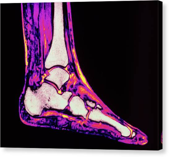 Ankles Canvas Print - Coloured Mri Scan Of Ankle Bones In The Human Foot by Simon Fraser/rvi, Newcastle Upon Tyne/ Science Photo Library