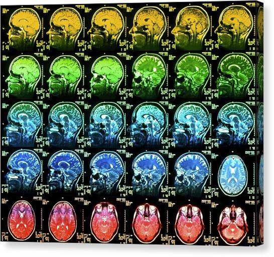 Coloured Mri Scans Of A Healthy Human Brain Canvas Print by Simon Fraser/science Photo Library