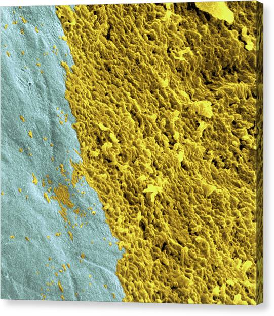 Coloured Sem Of A Dental Plaque Seen On A Tooth Canvas Print by Dr Tony Brain/science Photo Library