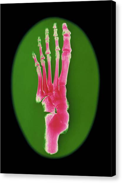 Ankles Canvas Print - Coloured X-ray Of Bones In A Human Foot (top View) by Dave Roberts/science Photo Library