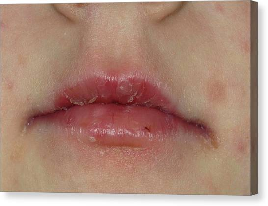 Cracked Peeling Lips After Viral Infectio Canvas Print by Dr P. Marazzi/science Photo Library