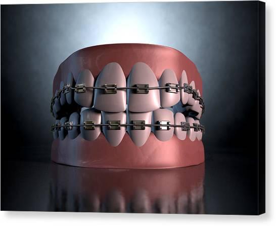 Braces Canvas Print - Creepy Teeth With Braces by Allan Swart
