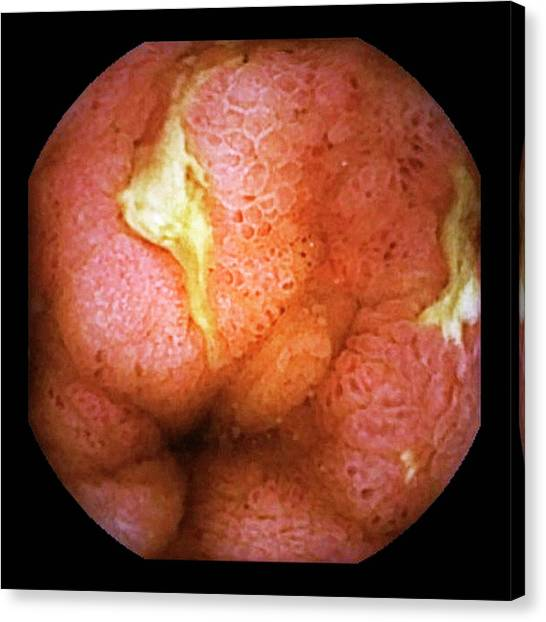 Chronic Canvas Print - Crohn's Disease by Gastrolab/science Photo Library