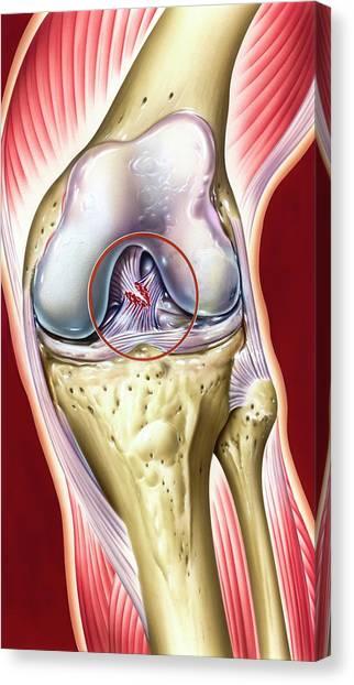 Cruciate Ligament Knee Injury Canvas Print by John Bavosi