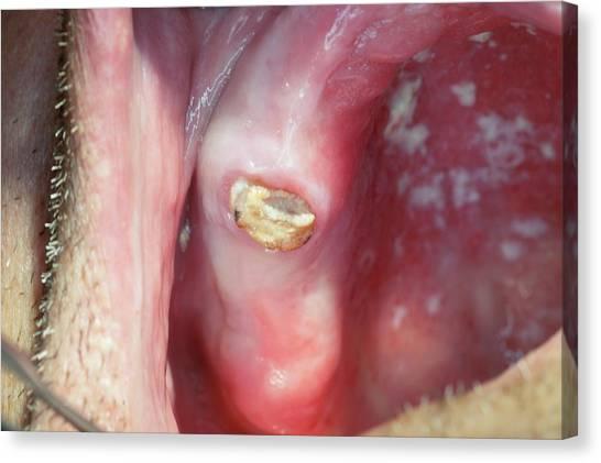 67 Canvas Print - Decayed Premolar Tooth by Dr Armen Taranyan