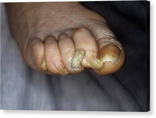 Deformed Toenails Canvas Print by Mike Devlin/science Photo Library
