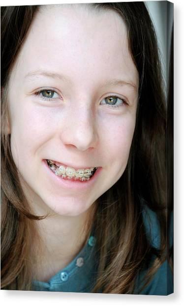 Braces Canvas Print - Dental Braces by Aj Photo/science Photo Library
