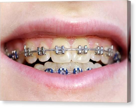 Braces Canvas Print - Dental Braces by Mark Thomas/science Photo Library