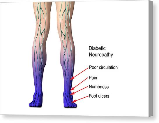 Diabetic Neuropathy Canvas Print by Carol & Mike Werner