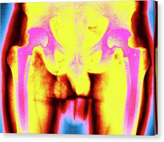 Groin Canvas Print - Double Hip Replacement by Larry Berman