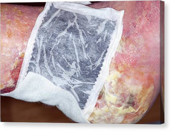 Chronic Canvas Print - Dressing For Chronic Venous Ulcers by Dr P. Marazzi/science Photo Library