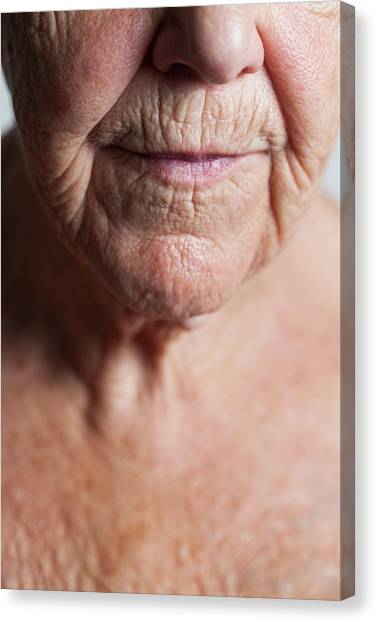 Chin Canvas Print - Elderly Woman's Lower Face And Upper Chest by Cristina Pedrazzini/science Photo Library