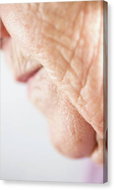 Chin Canvas Print - Elderly Woman's Mouth And Chin by Cristina Pedrazzini/science Photo Library