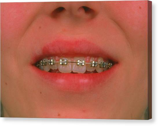 Braces Canvas Print - Fixed Braces On The Teeth Of A 13-year-old Girl. by Alex Bartel/science Photo Library