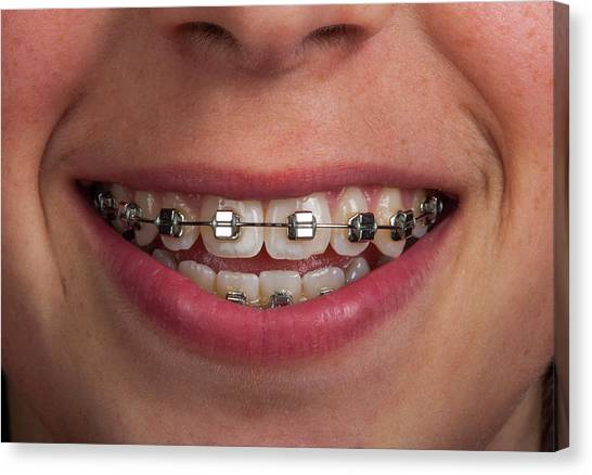 Braces Canvas Print - Fixed Orthodontic Braces by Pascal Goetgheluck/science Photo Library