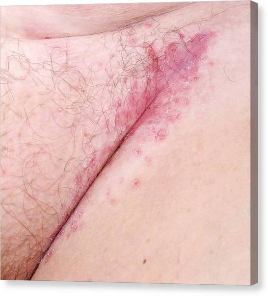 Groin Canvas Print - Flexural Psoriasis Of A Groin Cleft by Science Photo Library