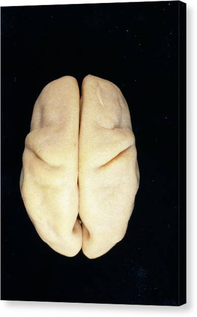 Abortion Canvas Print - Foetal Brain by Dr G. Moscoso/science Photo Library