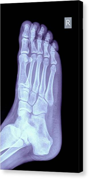 Ankles Canvas Print - Foot X-ray by Photostock-israel