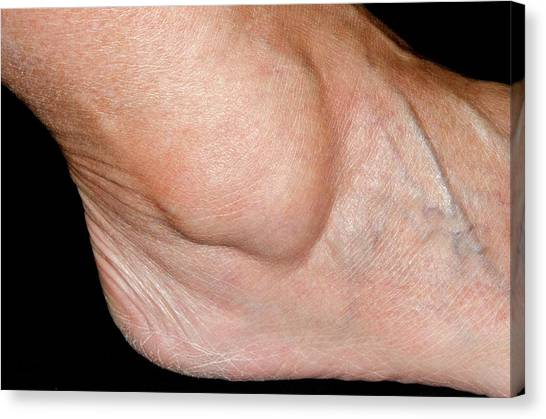 Ankles Canvas Print - Ganglion Over The Ankle by Dr P. Marazzi/science Photo Library