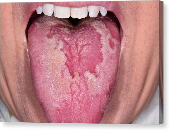 Geographic Tongue Canvas Print by Dr P. Marazzi/science Photo Library
