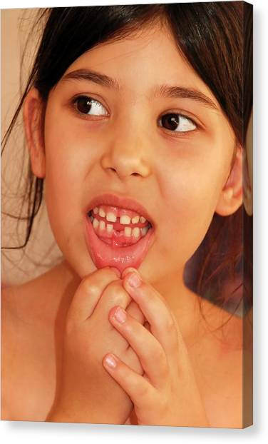 Girl With Missing Tooth Canvas Print by Photostock-israel