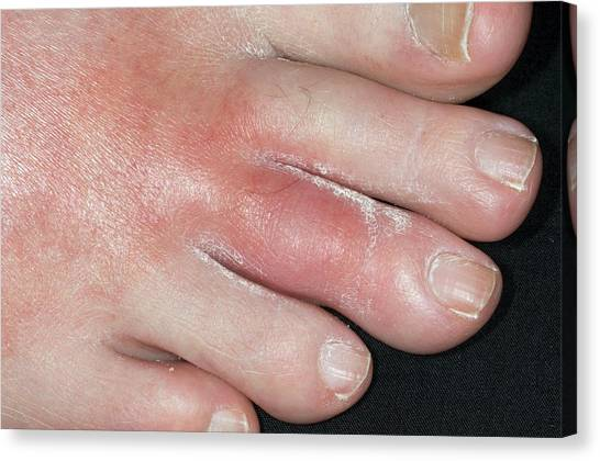 67 Canvas Print - Gout Of The Middle Toe by Dr P. Marazzi/science Photo Library