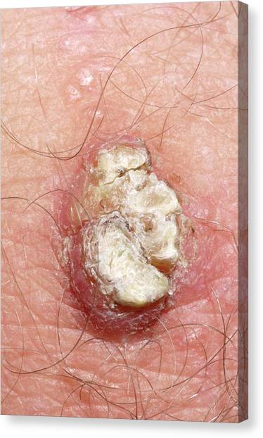 Neoplasm Canvas Print - Hamartoma Growth On Knee by Dr P. Marazzi/science Photo Library