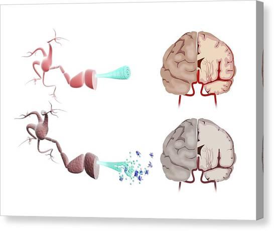 Cutout Canvas Print - Healthy And Alzheimer's Brains by Gunilla Elam